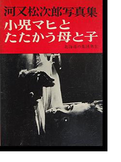 小児マヒとたたかう母と子 河又松次郎 写真集 Mothers and Children Fight against Polio Matsujiro Kawamata