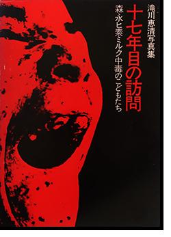 十七年目の訪問 森永ヒ素ミルク中毒のこどもたち 滝川恵清 The visit of the 17th year TAKIGAWA YOSHIKIYO